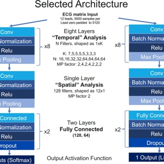 ECG architecture